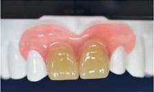 アルティメット義歯